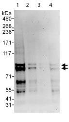 Western blot - Anti-MARK2 antibody (ab113284)