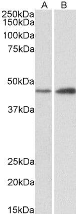 Western blot - Anti-NDRG2 antibody (ab113439)