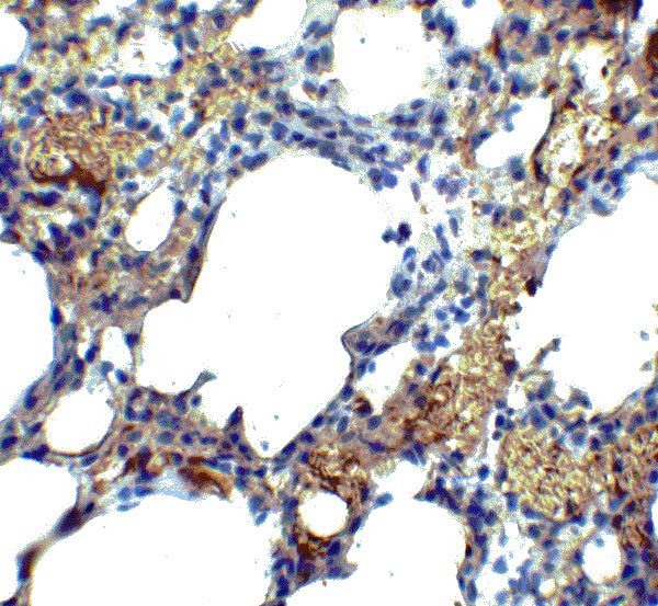 Immunohistochemistry (Formalin/PFA-fixed paraffin-embedded sections) - Anti-Transmembrane 4 L6 family member 1 antibody (ab113504)