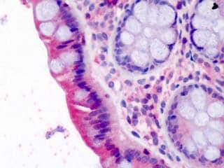 Immunohistochemistry (Formalin/PFA-fixed paraffin-embedded sections) - Anti-LASP1 antibody (ab113522)