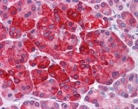 Immunohistochemistry (Formalin/PFA-fixed paraffin-embedded sections) - Anti-MTUS2 antibody (ab113709)