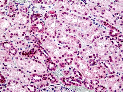 Immunohistochemistry (Formalin/PFA-fixed paraffin-embedded sections) - Anti-STEAP2 antibody (ab113719)