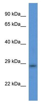 Western blot - Anti-TMEM33 antibody (ab113779)