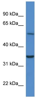 Western blot - Anti-CYB5R4 antibody (ab113783)