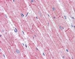 Immunohistochemistry (Formalin/PFA-fixed paraffin-embedded sections) - Anti-RHBDD3 antibody (ab113794)