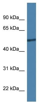 Western blot - Anti-CoREST2 / RCOR2 antibody (ab113826)