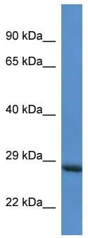 Western blot - Anti-RAB6C antibody (ab113838)