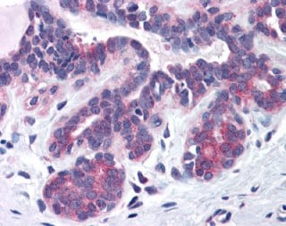 Immunohistochemistry (Formalin/PFA-fixed paraffin-embedded sections) - Anti-SNX16 antibody (ab113885)