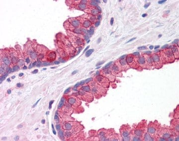 Immunohistochemistry (Formalin/PFA-fixed paraffin-embedded sections) - Anti-KLHL15 antibody (ab113906)