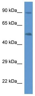 Western blot - Anti-CYP2W1 antibody (ab113910)