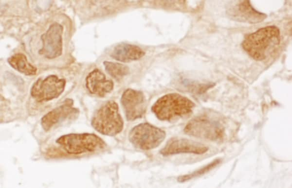Immunohistochemistry (Formalin/PFA-fixed paraffin-embedded sections) - Anti-TIGAR antibody (ab113980)