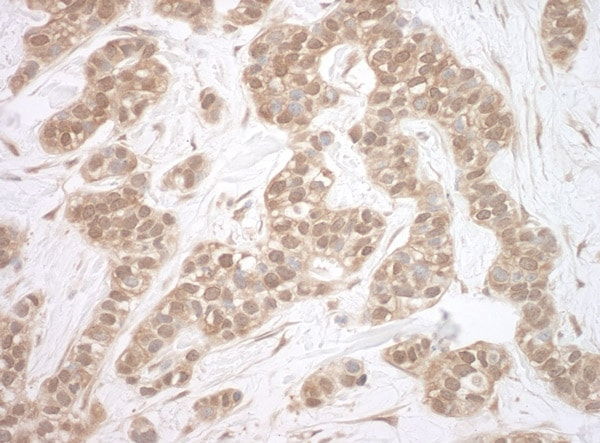Immunohistochemistry (Formalin/PFA-fixed paraffin-embedded sections) - Anti-HSPC142 antibody (ab115017)
