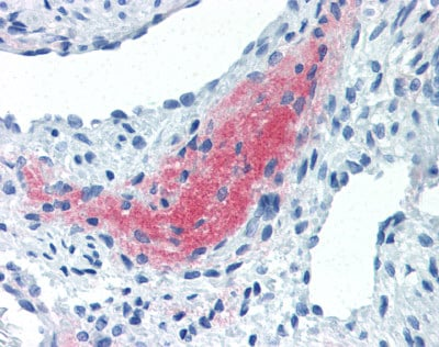 Immunohistochemistry (Formalin/PFA-fixed paraffin-embedded sections) - Anti-LEFTY2 antibody [7C5G1H6H10] (ab115224)