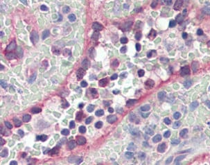 Immunohistochemistry (Formalin/PFA-fixed paraffin-embedded sections) - Anti-Pyrin antibody (ab115331)