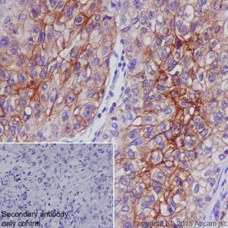 Immunohistochemistry (Formalin/PFA-fixed paraffin-embedded sections) - Anti-Glucose Transporter GLUT1 antibody [EPR3915] (ab115730)