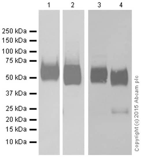 Western blot - Anti-Glucose Transporter GLUT1 antibody [EPR3915] (ab115730)