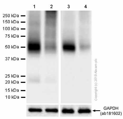 Western印迹-抗葡萄糖转运蛋白GLUT1抗体[EPR39 15](AB115730)