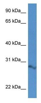 Western blot - Anti-Arpin antibody (ab115906)