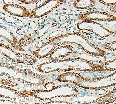 Immunohistochemistry (Formalin/PFA-fixed paraffin-embedded sections) - Anti-Ribonuclease 3 antibody (ab116017)