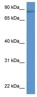 Western blot - Anti-RNF98 antibody (ab116212)