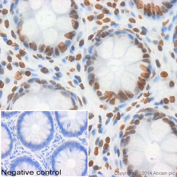 Immunohistochemistry (Formalin/PFA-fixed paraffin-embedded sections) - Anti-Histone H2A antibody (ab116553)