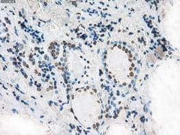 Immunohistochemistry (Formalin/PFA-fixed paraffin-embedded sections) - Anti-XRCC4 antibody [OTI4H9] (ab118008)