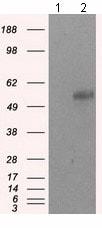 Western blot - Anti-SIL1 antibody [OTI1C4] (ab118155)