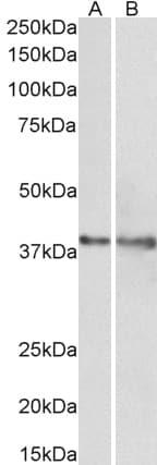 Western blot - Anti-IDH3G antibody (ab118289)
