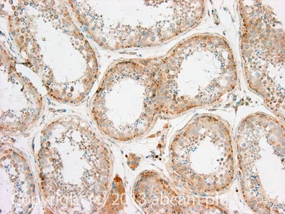 Immunohistochemistry (Formalin/PFA-fixed paraffin-embedded sections) - Anti-TDRD5 antibody (ab118424)