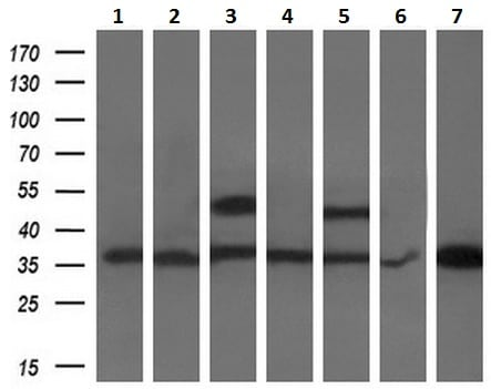 Western blot - Anti-PDXK.1 antibody [5H5] (ab119051)