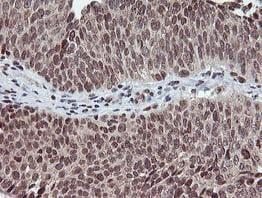 Immunohistochemistry (Formalin/PFA-fixed paraffin-embedded sections) - Anti-TPSG1 antibody [OTI1G1] (ab119268)