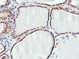 Immunohistochemistry (Formalin/PFA-fixed paraffin-embedded sections) - Anti-PNPO antibody [OTI1H9] (ab119395)