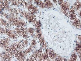 Immunohistochemistry (Formalin/PFA-fixed paraffin-embedded sections) - Anti-FBXO21 antibody [OTI5F11] (ab119426)
