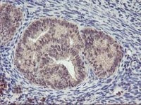 Immunohistochemistry (Formalin/PFA-fixed paraffin-embedded sections) - Anti-PNMT antibody [OTI1D2] (ab119784)