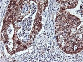 Immunohistochemistry (Formalin/PFA-fixed paraffin-embedded sections) - Anti-NLN antibody [OTI1D6] (ab119802)