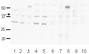 Western blot - Anti-HIF1AN  antibody (ab12289)