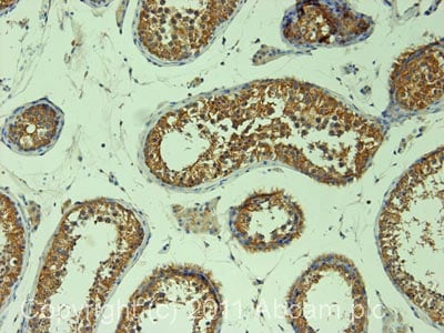 Immunohistochemistry (Formalin/PFA-fixed paraffin-embedded sections) - Anti-DIAPH2 antibody (ab12319)