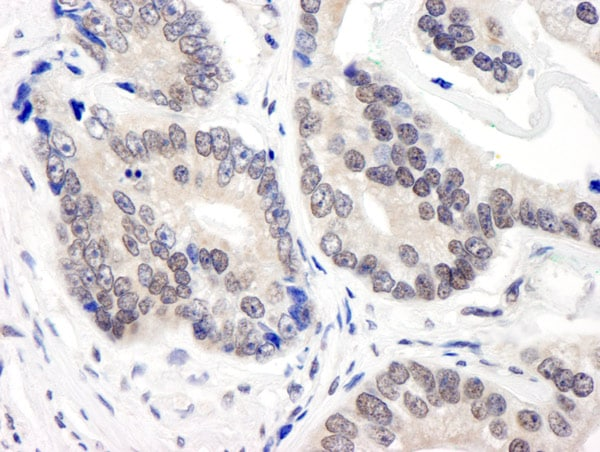 Immunohistochemistry (Formalin/PFA-fixed paraffin-embedded sections) - Anti-COPS3 antibody (ab12321)