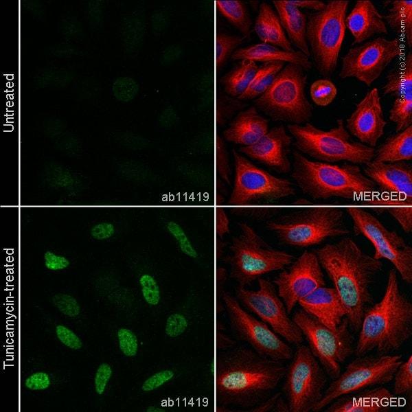 Immunocytochemistry - Tunicamycin, Protein glycosylation inhibitor (ab120296)
