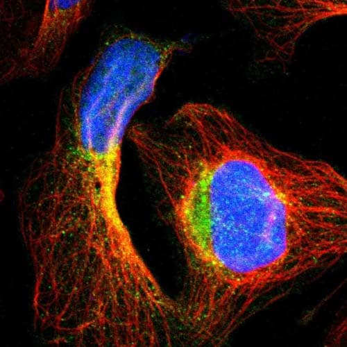Immunocytochemistry/ Immunofluorescence - Anti-TECPR2 antibody (ab121109)