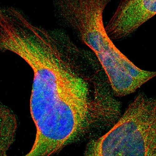 Immunocytochemistry/ Immunofluorescence - Anti-DOCK8 antibody (ab121177)