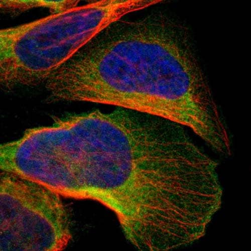 Immunocytochemistry/ Immunofluorescence - Anti-C1orf198 antibody (ab121220)