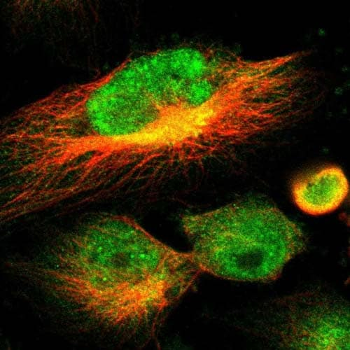 Immunocytochemistry/ Immunofluorescence - Anti-C12orf70 antibody (ab121424)