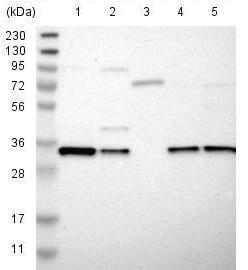Western blot - Anti-GSG1L antibody (ab121432)
