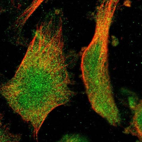 Immunocytochemistry/ Immunofluorescence - Anti-IFFO2 antibody (ab121494)