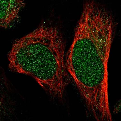 Immunocytochemistry/ Immunofluorescence - Anti-C22orf15 antibody (ab121549)