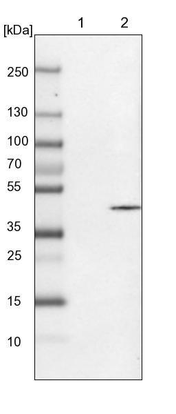 Western blot - Anti-SVOPL antibody (ab121553)