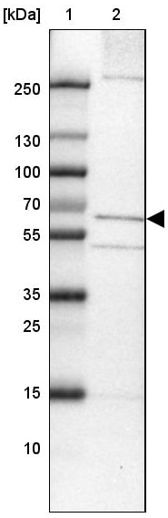 Western blot - Anti-TMEM87A antibody (ab121556)