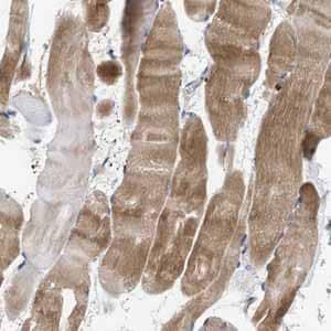 Immunohistochemistry (Formalin/PFA-fixed paraffin-embedded sections) - Anti-C9orf93 antibody (ab121616)