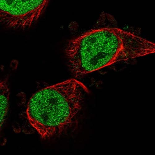 Immunocytochemistry/ Immunofluorescence - Anti-PTRHD1 antibody (ab121618)